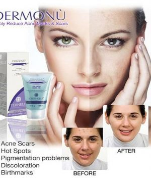 Acne Removal Cream in Pakistan