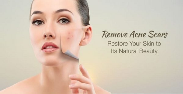 Derma Roller For Acne Scars Treatment