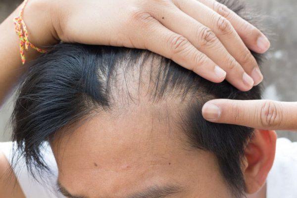 Derma Roller for Hair Loss in Pakistan