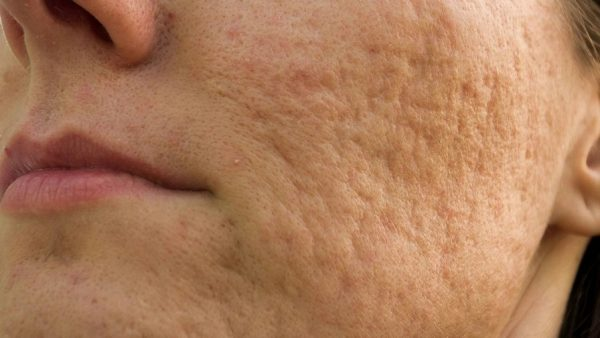 Derma Roller for Face Pores Treatment